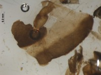 Chironomidae body fragment